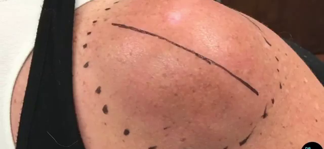 Dr. Pimple Popper — Watch This MASSIVE Lipoma Get Ripped Out Of A Patient's Shoulder!!