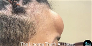 Dr. Pimple Popper — Watch This Monster 'Heart Shaped' Forehead Lipoma Get Ripped Out!!