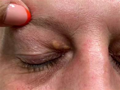 Dr. Pimple Popper — Watch Her Cut Out A Massive Growth Right On Top Of A Eyelid!!