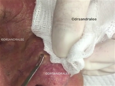 Dr. Pimple Popper — Watch This Man's Face EXPLODE 'Angel Hair Pasta' Out Of His Nose!!