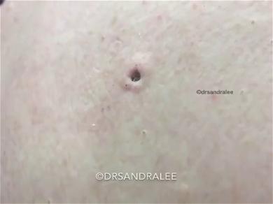 Dr. Pimple Popper — See The Huge Blackhead That Looks Like It's Growing A Botfly Inside!!