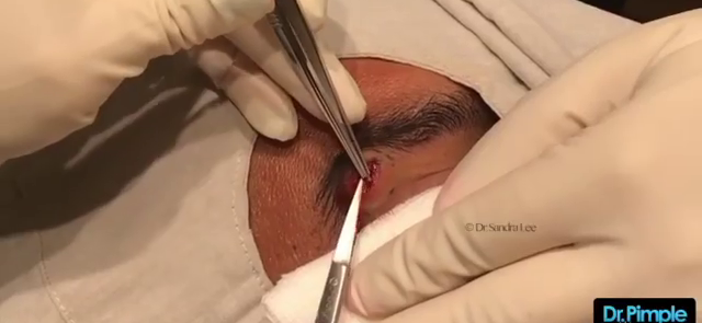 Dr. Pimple Popper — Watch This 'Blue Cheese' Filled Eyebrow Explode!