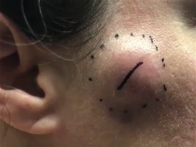 Dr. Pimple Popper — Watch This MONSTER Cheek Cyst Pour Out Like A Waterfall!!