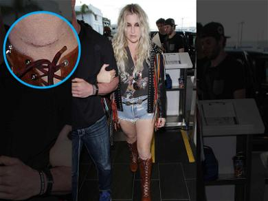Kesha Shows Off Gnarly Scar for First Time Since ACL Surgery