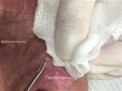 Dr. Pimple Popper — Watch A Decades Old Whitehead Shoot Out Like SILLY String!!
