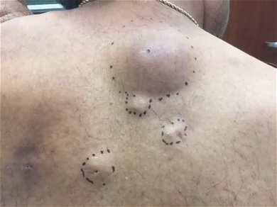 Dr. Pimple Popper — This Massive Cyst Looks Like A Tube Of Cookie Dough Being Squeezed Out
