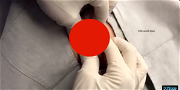 Dr. Pimple Popper Has Something Big For The Lipoma Lovers!