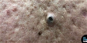 Dr. Pimple Popper — See The BIGGEST Blackhead You've Ever Seen Get Squeezed!
