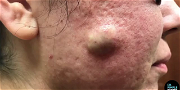 Dr. Pimple Popper — A Bowl Of Oatmeal Pours Right Out Of This Person's Cheek!