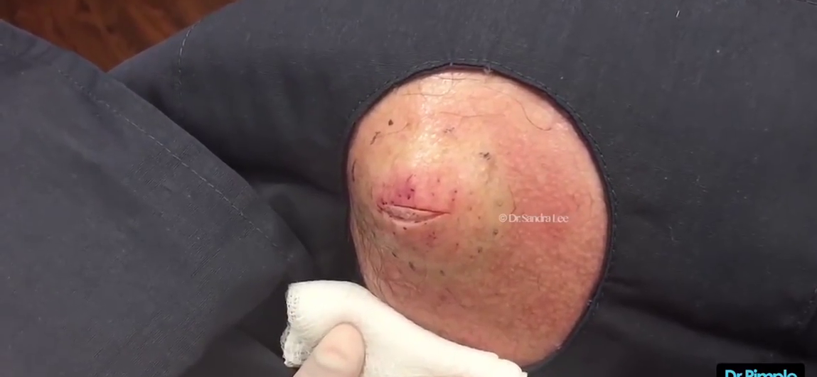 Dr. Pimple Popper — Watch This MASSIVE  'Egg Salad' Loaded Cyst Explode!!