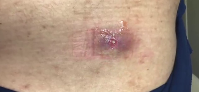 Dr. Pimple Popper — See Brutal 'Inflamed' Epidermoid Cyst EXPLODE!
