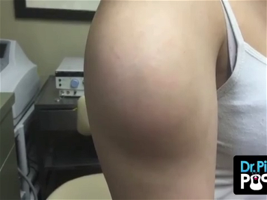 Dr. Pimple Popper — See The Biggest Cyst Explode And Take Out The Camera!!