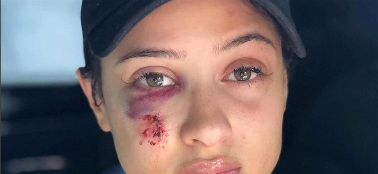Rich The Kid's Girlfriend Reveals Injured Face Following Home Invasion, Says Rapper Is 'Recovering'