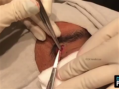 Dr. Pimple Popper — Massive Whitehead Popping Looks Like 'Mashed Potatoes'!