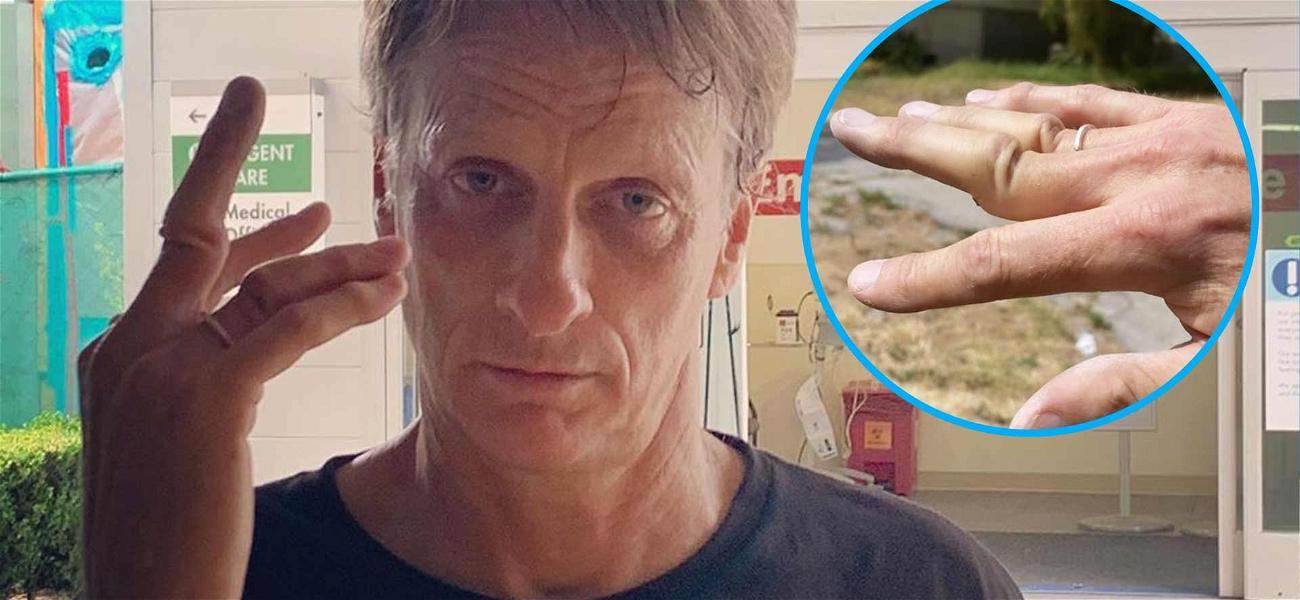 Tony Hawk Shows Off Gnarly Dislocated Fingers