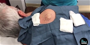 Dr. Pimple Popper — Super Bowl Sunday Cyst EXPLODES Mashed Potatoes!