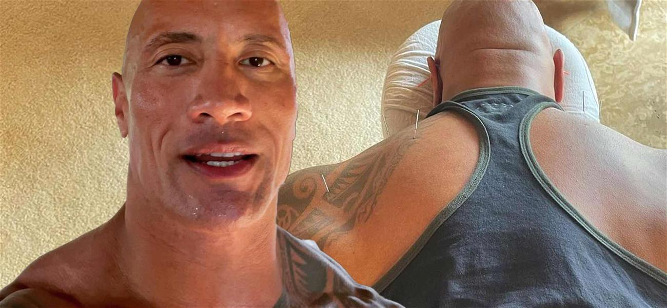 Dwayne 'The Rock' Johnson Shares Gnarly Acupuncture Pic, Lists Horrific Injuries
