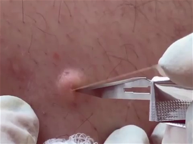 Dr. Pimple Popper — The Greatest Fireworks Style EXPLODING Cysts For 4th Of July!!