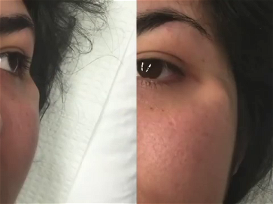 """Dr. Pimple Popper — Watch The """"Cottage Cheese"""" Explode Out Of This Face During Session"""