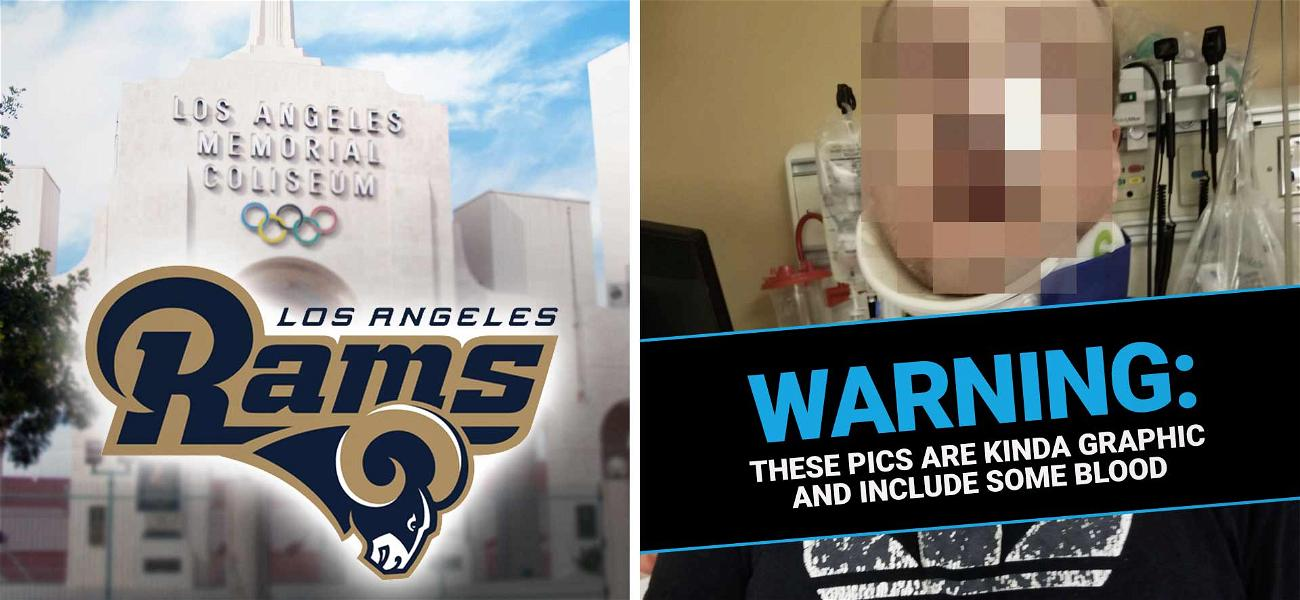 Los Angeles Rams Sued Over Concession Stand Fight That Left One Fan with a Brain Injury
