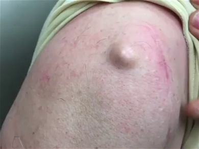 Dr. Pimple Popper — Watch This GIANT Whitehead Get Punched, It Just Won't Stop Pouring!