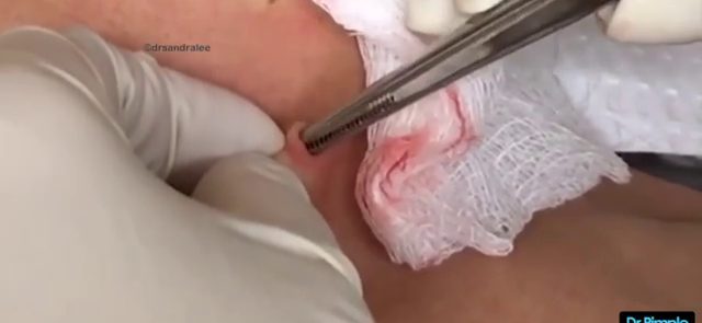 Dr. Pimple Popper — See This Cyst Which Grew A Fingernail Inside Patient's Neck!