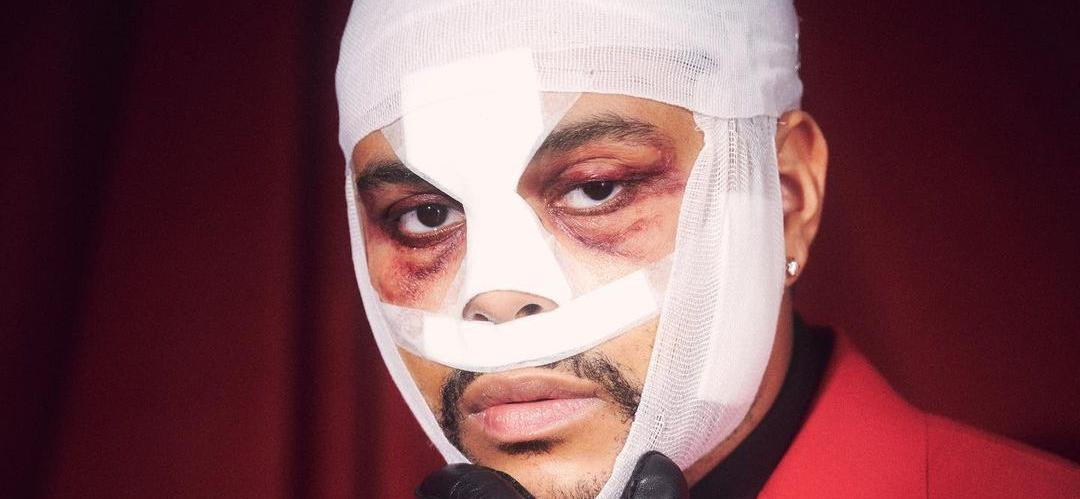 What Happened To The Weeknd's Bandaged Face?