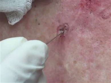Dr. Pimple Popper — Monster Blackhead ROLLS Right Out Of This Person's Face!