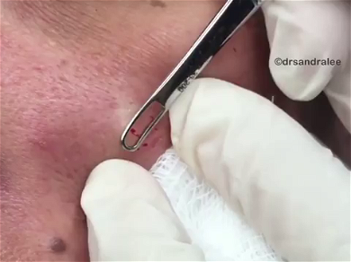 Dr. Pimple Popper — See This Whitehead Make A HUGE Splash On This Guy's Face!