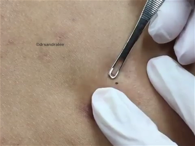 Dr. Pimple Popper — See The HUGE Cyst Pour A Lava Flow Of Yellow Liquid!