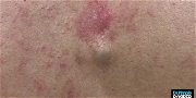 Dr. Pimple Popper — You Will Never Believe What Comes Out Of This Tiny Pimple!