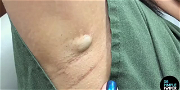 Dr. Pimple Popper — Watch This PAINFUL Looking Armpit Cyst Open Up Like A Blooming Flower!