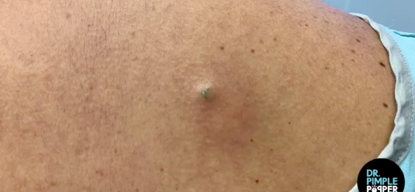 Dr. Pimple Popper — This One Actually Gets Dug Out By A Spoon!