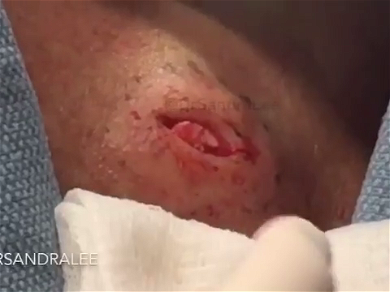 Dr. Pimple Popper — Giant Cyst Explodes White Goop Looking Like 'Lobster Meat!'