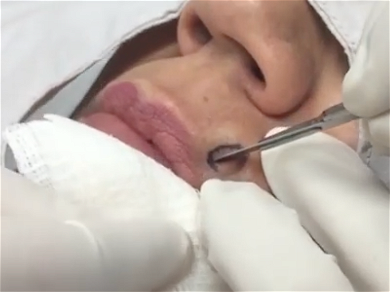 Dr. Pimple Popper — Watch A Huge One Pop Across The Room In SLOW MOTION!