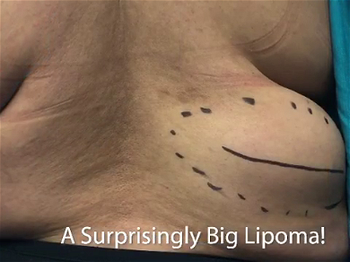 Dr. Pimple Popper — See This GIANT Lipoma Launch Out Of This Patient's Back!