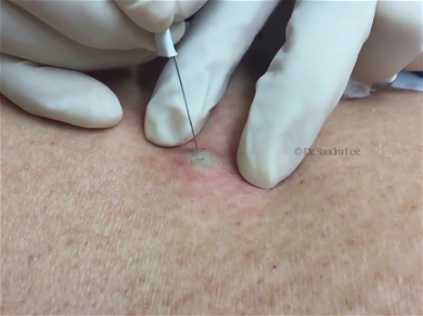 Dr. Pimple Popper — Hear Why Blackheads Are Black While Watching One Explode!!