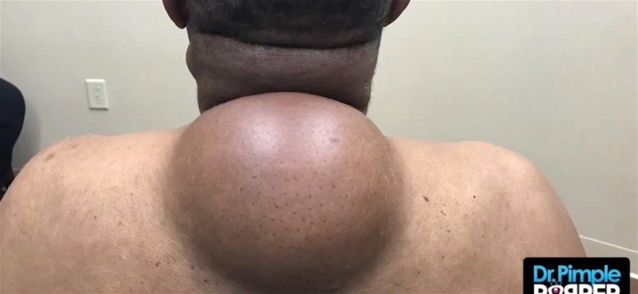 Dr. Pimple Popper — The 'Mother' Of Them All, See The Biggest Pop EVER!