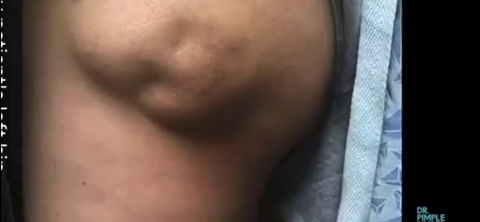 Dr. Pimple Popper — Watch This Abscess POUR 'Chocolate Pudding' It Is Unreal!