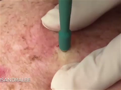 Dr. Pimple Popper — Watch This Whitehead Get 'Punched' Looks Like A Bullet Hole!