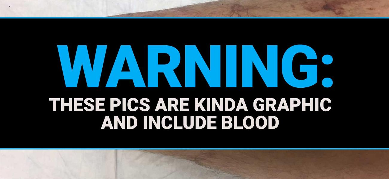 'Storage Wars' Star's Bloody Leg Photos