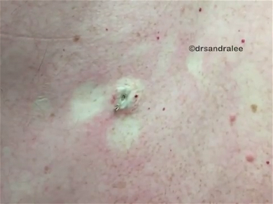 Dr. Pimple Popper — See The Biggest Blackhead Ever Squeezed Out Of A Back