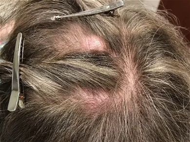Dr. Pimple Popper — Watch A 'Piece Of Bacon' Come Flying Out Of This Head!