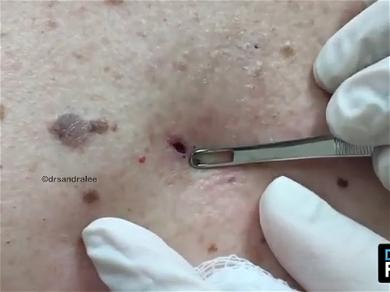 Dr. Pimple Popper — The Black Head That 'Can't Stop, Won't Stop!'