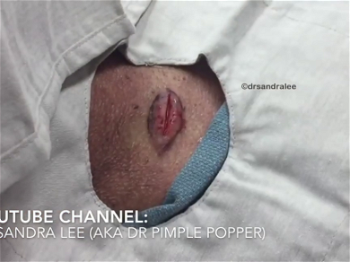 Dr. Pimper Popper — Watch Her Deliver A 'Baby Lipoma' Out Of The Person's Body!