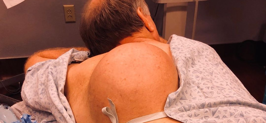 Dr. Pimple Popper — See The Massive 12-POUND Cyst On The Outside!