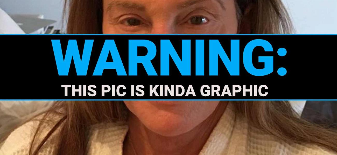 Caitlyn Jenner Nose a Thing or Two About Sun Damage, Reveals Shocking Pic