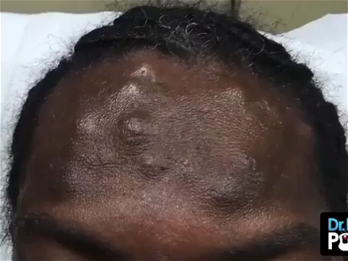 Dr. Pimple Popper — Check Out This Forehead Cyst POUR Liquid Cheese!!