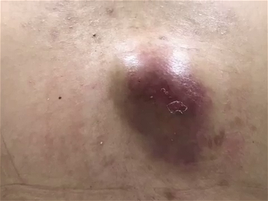Dr. Pimple Popper — Shocking Video Of An 'Abscess Waterfall'…You Have To See This!