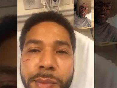 Jussie Smollett Seen with Facial Injuries in First Time Since Vicious Attack